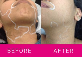 laser-hair-removal-result