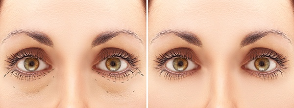 dark circles under eyes laser treatment