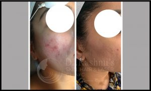chemical peels treatment before after